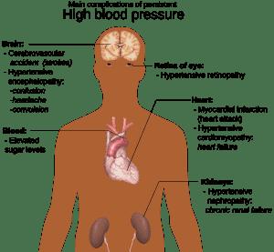 Terkena Tekanan Darah Tinggi